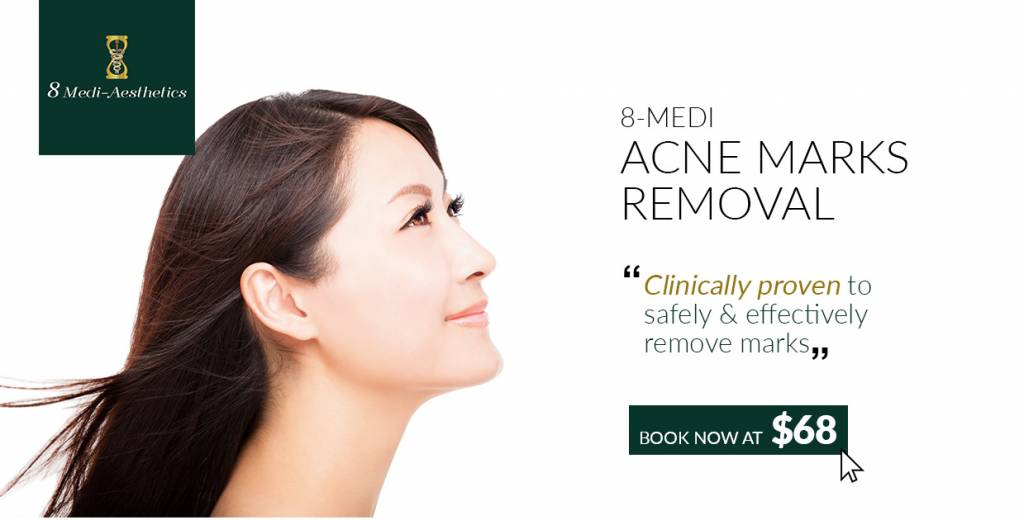 Acne Marks Removal • Singapore Classifieds